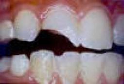 dente quebrado tratamento de canal