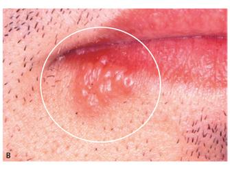 herpes labial foto