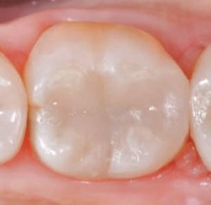 10 Duvidas Sobre Restauracao Dentaria De Resina Da Cor Do Dente