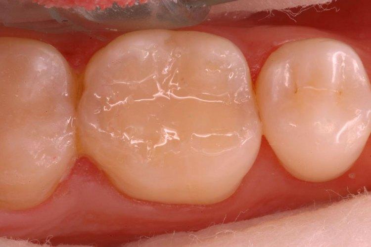 restauração dentária de resina