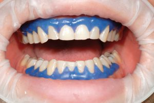 Clareamento Dental A Laser Tudo O Que Voce Precisa Saber