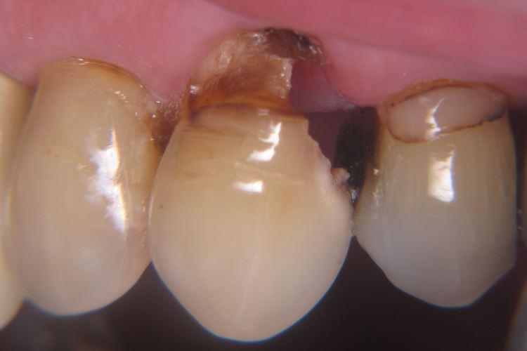 dente podre fotos 5