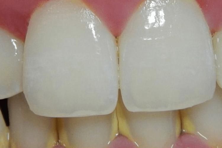 Tártaro no dente