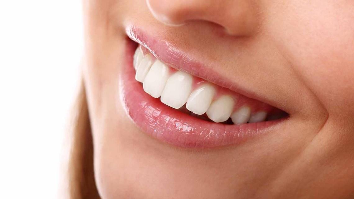 sorriso saudável