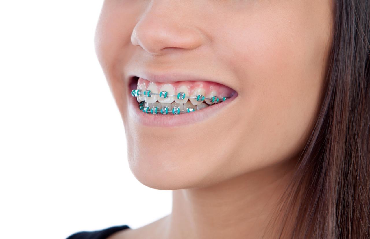 Como Escolher A Cor De Borrachinha De Aparelho Dentario