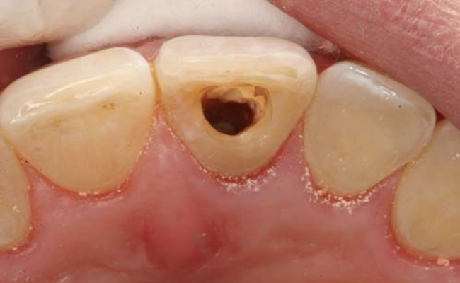 curativo no dente