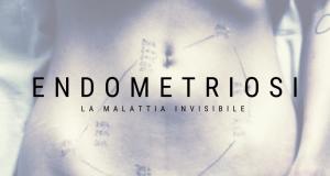 Endometriosi: la mia storia