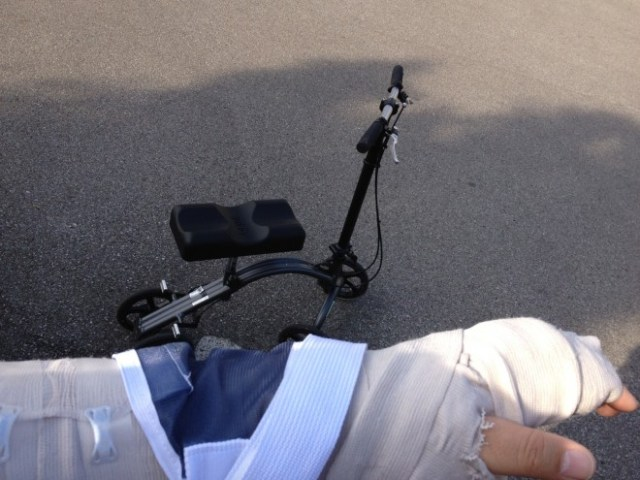Picture of a knee scooter and my broken arm in the foreground.