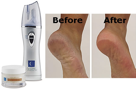 foot hard skin remover boots