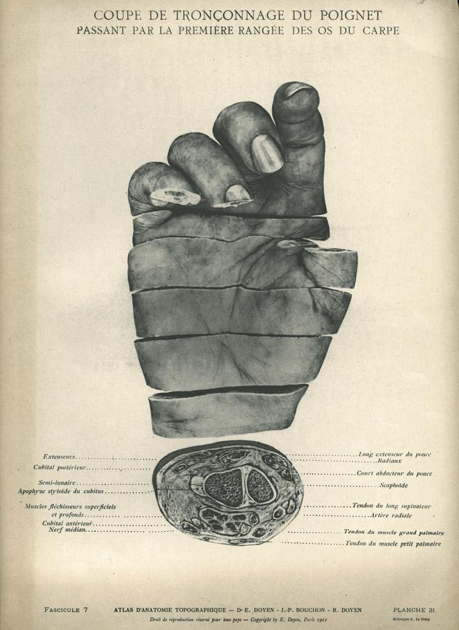 Atlas of Topographic Anatomy