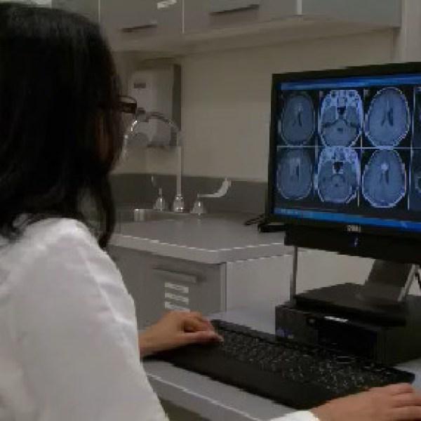 brain injury_558589