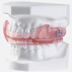 mouth-guard-snoring-solutions