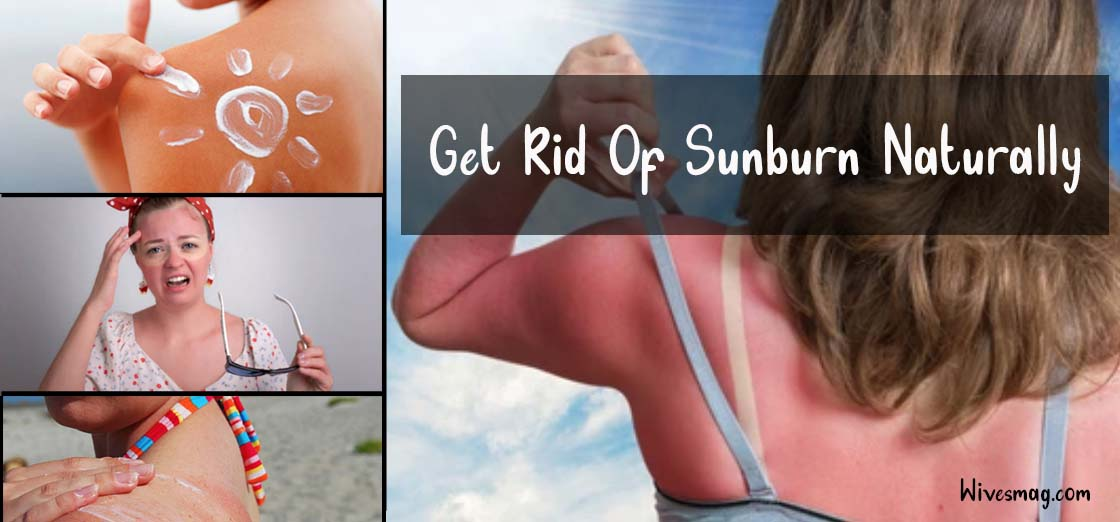 How To Get Rid Of Sunburn Naturally | Best Home Remedies