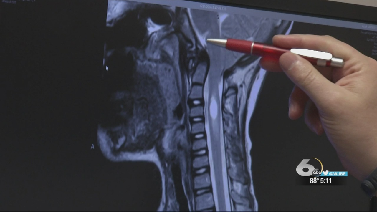 Chiari malformation meeting with Augusta University is canceled.