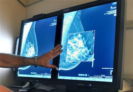 mammogram_60474