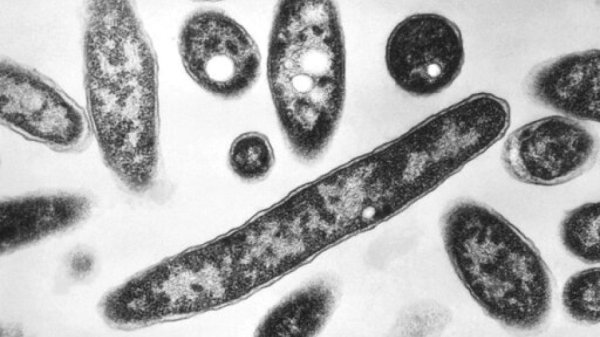 NC confirms 2nd death from Legionnaires