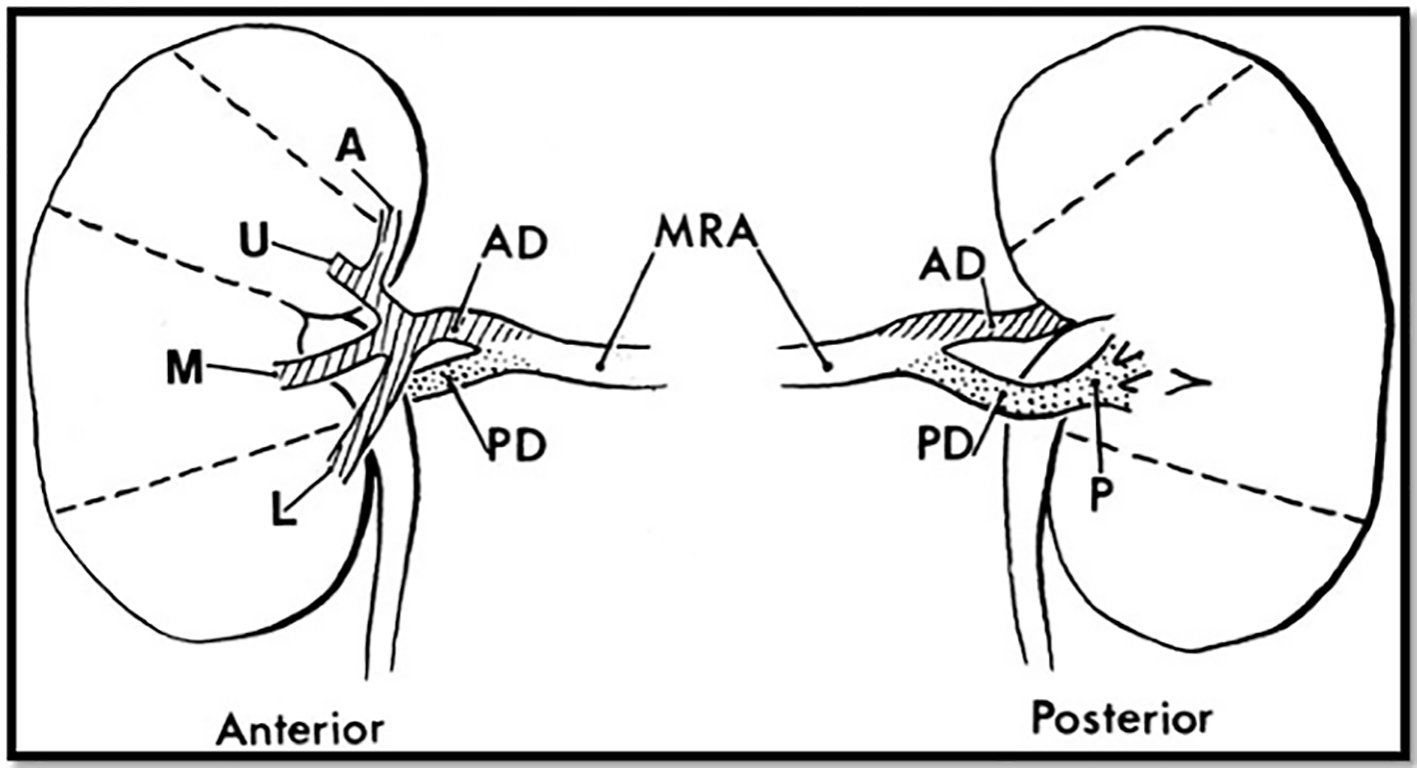 Acute Renal Infarction Pathogenesis And Atrial Fibrillation Case Report And Literature Review