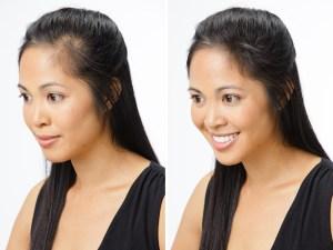 Hair-Loss-In-Women1