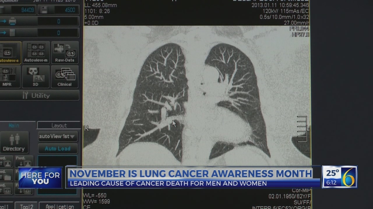 This Morning: Losing a loved one to lung cancer