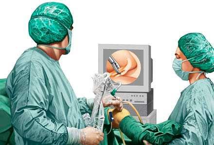 Αρθροσκόπηση γόνατος και ώμου - Πως γίνεται, ποιος ο χρόνος ανάρρωσης