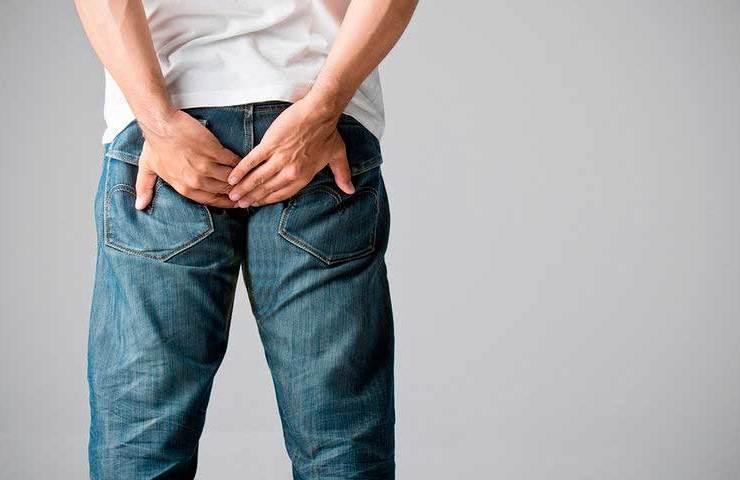 Ραγάδα πρωκτού και κύστη κόκκυγος - Συμπτώματα, Αιτίες, Θεραπεία