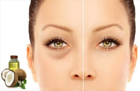 How To Get Rid Eyes Dark Circles With Simple Home Remedies