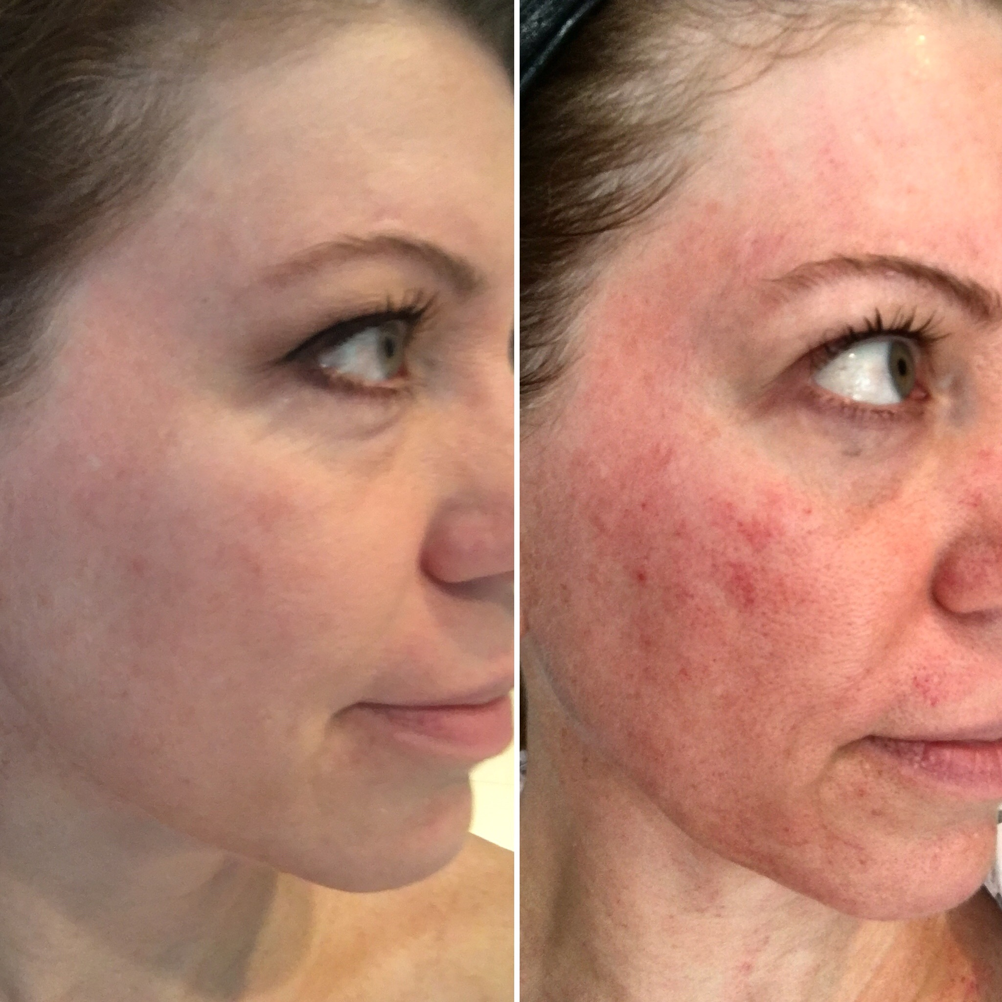 Microdermabrasion vs Dermaplaning vs Microneedling, My Experience and Results!