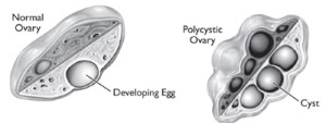 Diagram comparing normal and polycystic ovaries