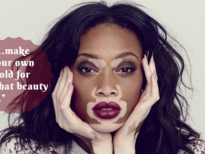 living with vitiligo