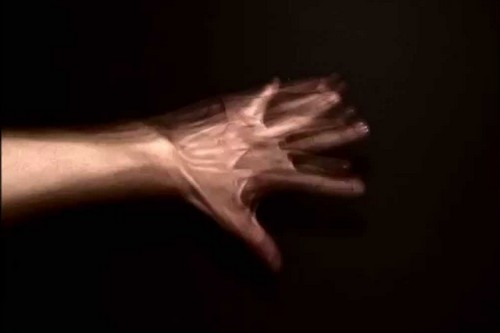 Alien Hand Syndrome (AHS)