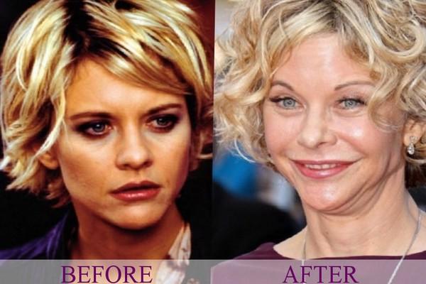 Meg Ryan plastic surgery