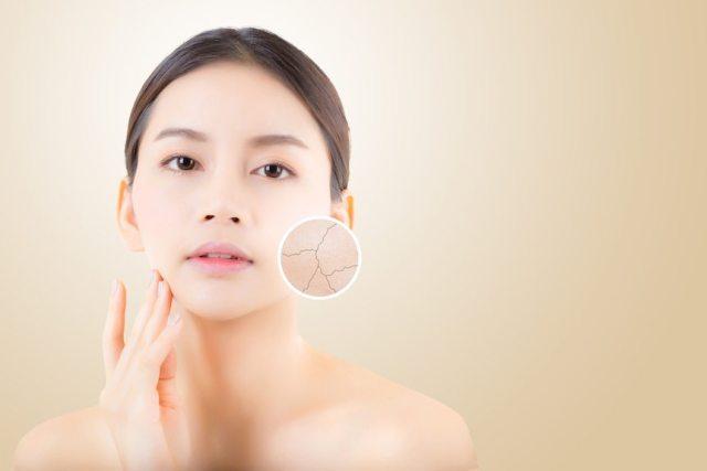 Dry Skin or Dehydration