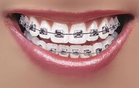 How to Care for your Braces