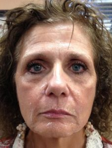 GM-Before-Botox-&-Juvederm-Photo-with-No-Comment