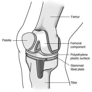 Knee Replacement Guide  Woodstown Massage