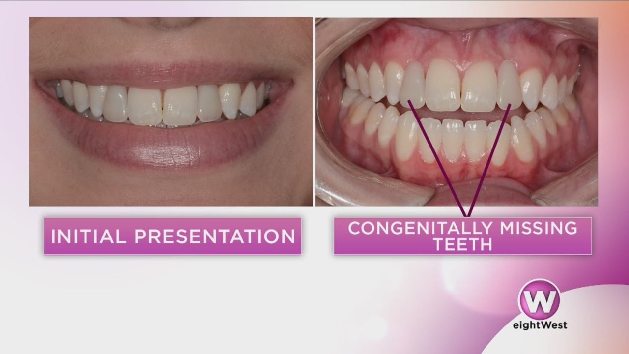 Perfecting_the_perfect_smile_0_20180518171809