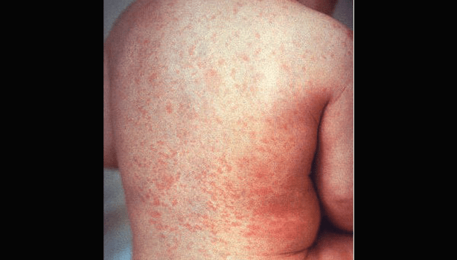 Rubella rash CDC 020119 edited_1549062556454.png.jpg