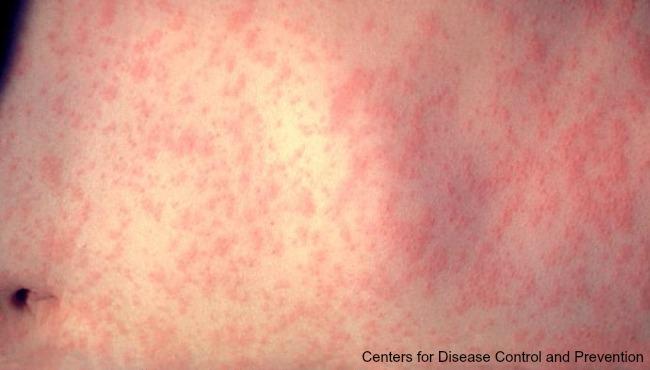 measles-cdc-generic_1521045480047.jpg