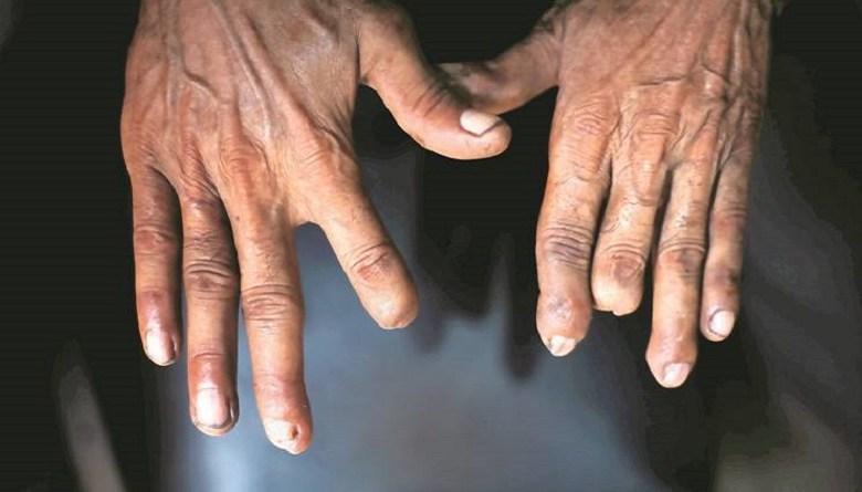 Photo of Special Report: 'कमलेश का हाथ सड़ रहा है, हमारे पास पैसे नहीं हैं, हम आगे क्या करें?'- देश की राजधानी में मज़दूरों को अपंग बनाने वाले कारखानों की दास्तान