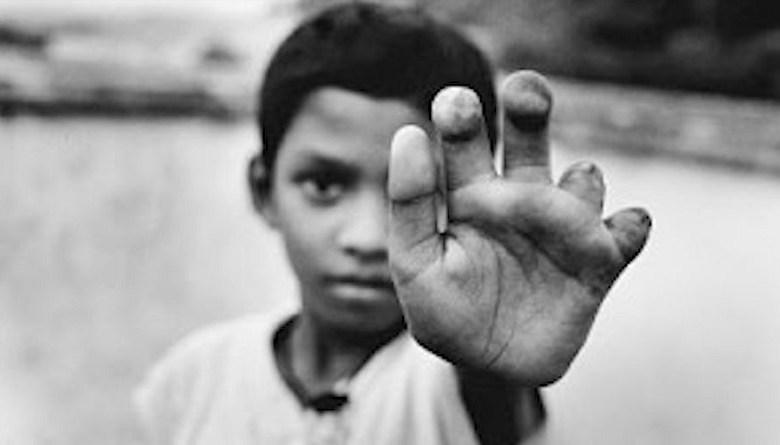 Photo of हम रेडियोएक्टिव बच्चे-2ः मज़दूरों की तबाही पर महाशक्ति बनने की जालसाजी का नाम जादूगौड़ा