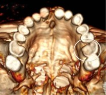 Top view of the upper jaw (3D reconstruction), showing severe dental abrasion and the lost cusp (circled)