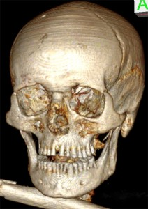 Skull of the Iceman seen from the front. The genetic increased distance between the central front teeth as well as the severe dental abrasion can be seen, which led to a loss of more than half of the crowns in the front. Image: University of Zurich