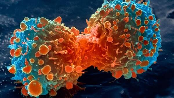 Best ways to prevent cancer