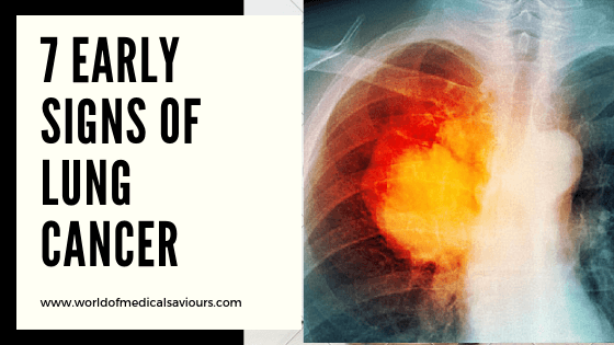 7 early signs of lung cancer-woms