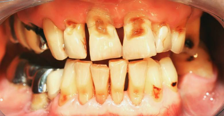 All you need to know about tooth decay in kids-woms