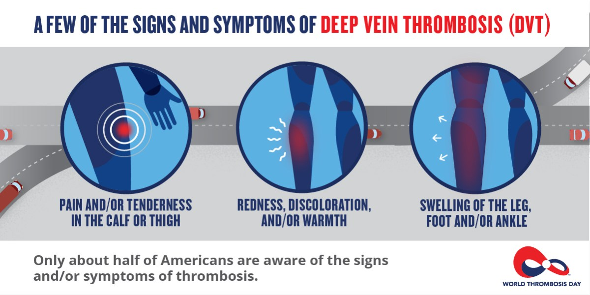 Image result for deep vein thrombosis