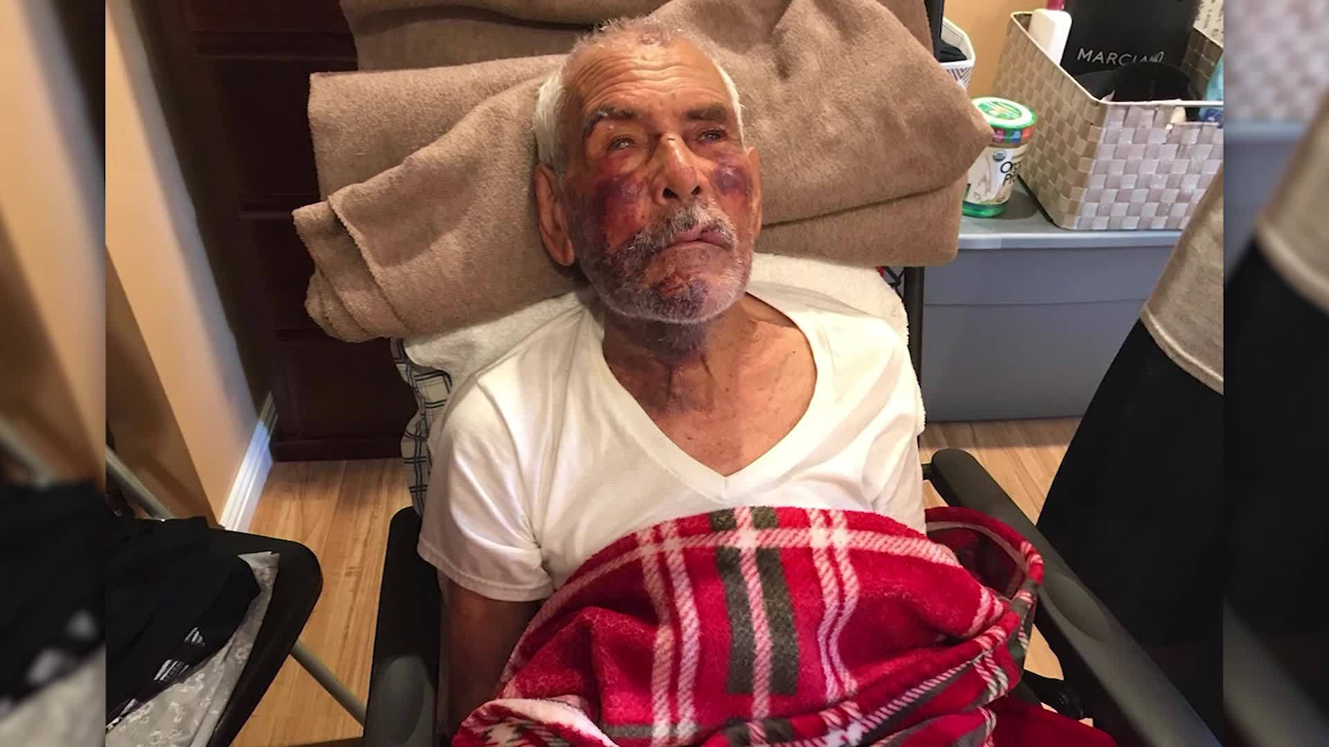 Elderly_man_beaten__told_to__go_back__to_0_20180710030438-846653543
