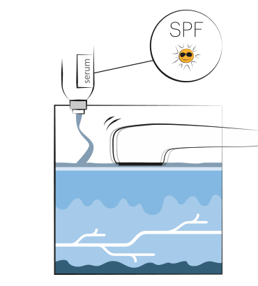 MSP Behandeling SPF