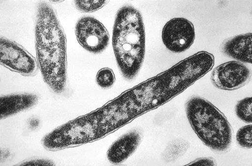 NC officials confirm new case of Legionnaires