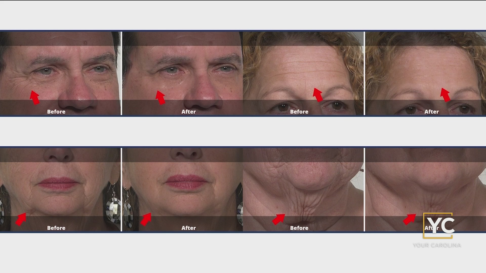 All You Need Is 10 Minutes To Look Young Again With Plexaderm